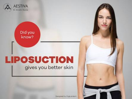 Best Surgeon for Liposuction in Delhi - Dr  Mrinalini Sharma